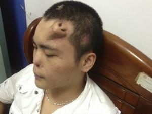 médicos medicina China saúde transplante órgão nariz testa paciente chinês