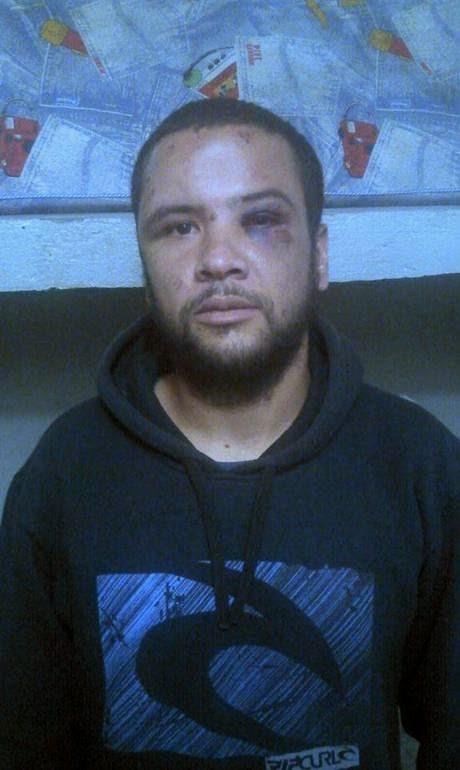 Professor André Luiz Ribeiro com ferimentos no rosto