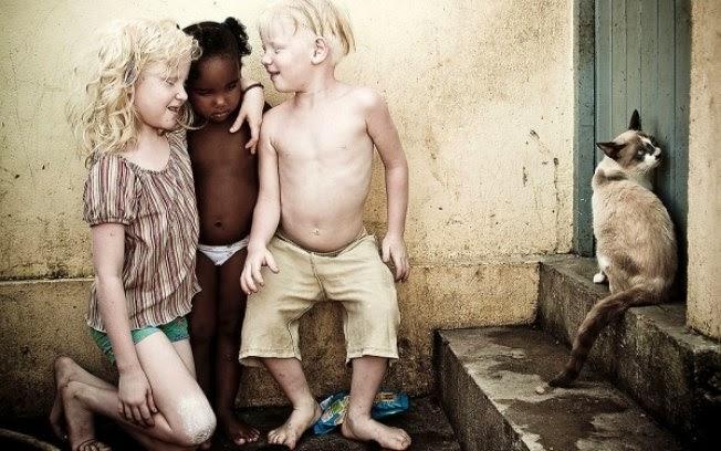 Fotos de albinos tirados pelo fotógrafo Alexandre Severo