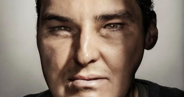 Homem que sofreu transplante de rosto está 'inegavelmente atraente', diz revista