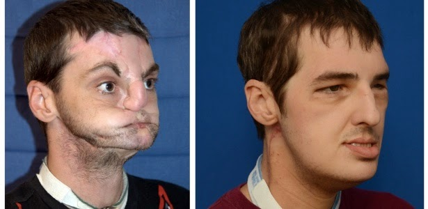Richard Norris antes e depois do transplante facial