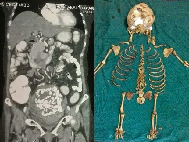 Esqueleto de feto que ficou 36 anos no corpo de uma indiana
