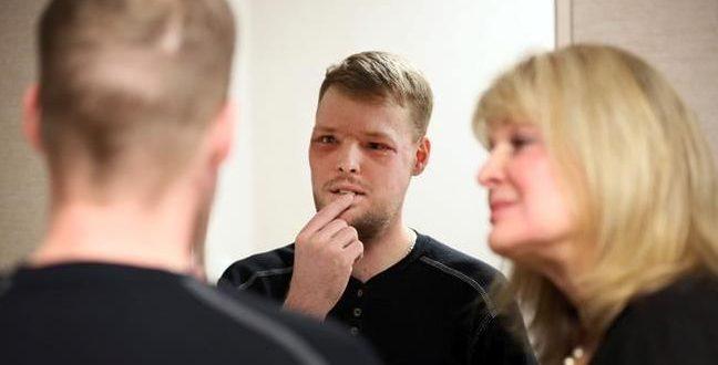 Transplante de rosto dá nova chance a americano que atirou em si mesmo