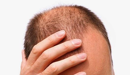 Cientistas fazem cabelo voltar a crescer em laboratório