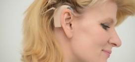 Britânica de 40 anos ouve sons pela primeira vez após receber implante coclear