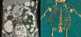 Esqueleto de feto ficou 36 anos em corpo de mulher na Índia