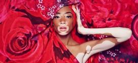 Após sofrer bullying, modelo com vitiligo quebra barreiras no mundo da moda