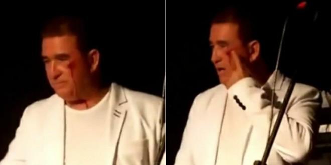 Amado Batista é agredido em show e deixa palco com o rosto sangrando